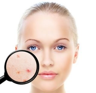 Reduce Acne in 1 week – TaylorMade® Treatments