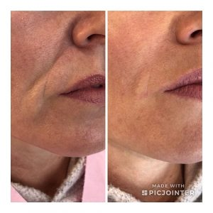 Dermal fillers to remove nose to mouth lines, helen taylor aesthetics clinic, rugby, warwickshire