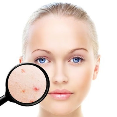 acne treatments at helen taylor aesthetics clinic in rugby