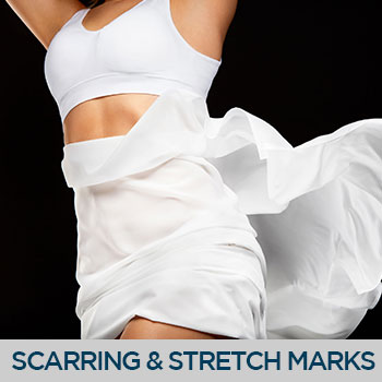 Scarring & Stretch Marks