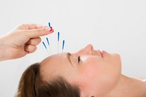 facial acupuncture at helen taylor aesthetics clinic in warwickshire