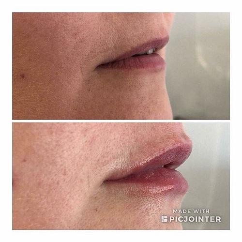 fuller lips dermal fillers for lips rugby