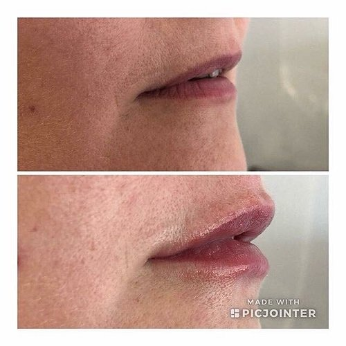 fuller lips dermal fillers for lips rugby
