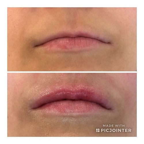 improve lips with lip fillers at Helen Taylor Aesthetics Clinic Rugby