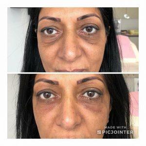 improve under eye darkness