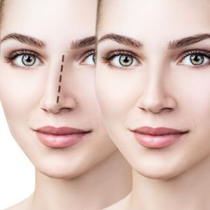 non surgical rhinoplasty, the best non-surgical cosmetic treatments in Warwickshire at Helen Taylor Aesthetics Clinic, Rugby