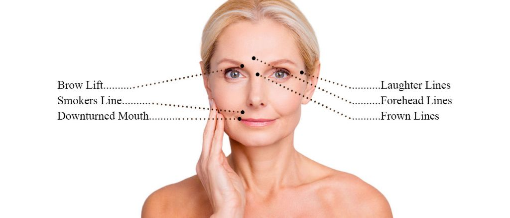 anti wrinkle treatments, Helen aylor Aesthetics Clinic in Rugby, Warwickshire