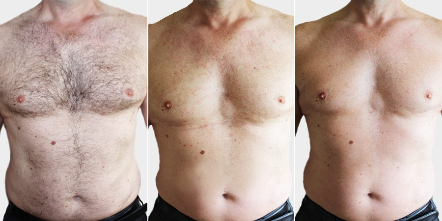 Before & After Elsyion Laser Hair Removal Treatment at Top Aesthetics Clinic in Rugby, Warwickshire