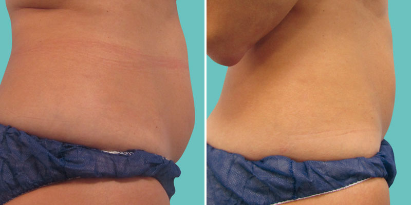 Before and After Fat Freezing Cooltech Treatments at Helen Taylor Aesthetics Clinic in Rugby, Warwickshire
