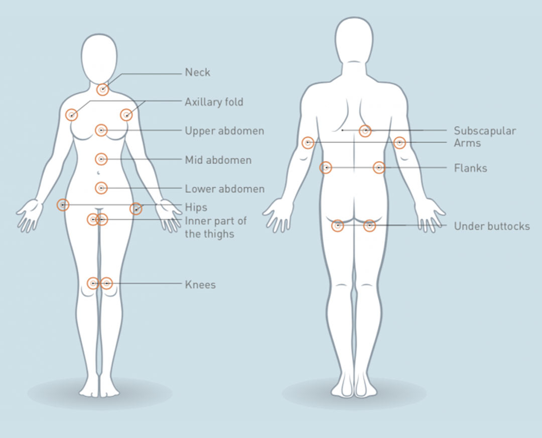 Treatment Areas For Fat Freezing Treatments at Helen Taylor Aesthetics Clinic in Rugby, Warwickshire