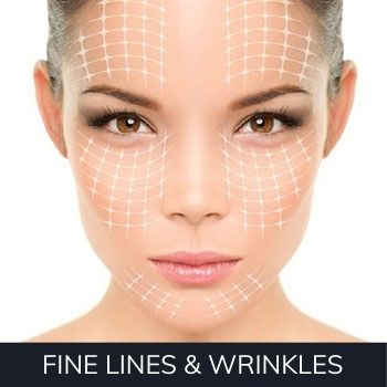 the best anti-wrinkle treatments in the West Midlands.