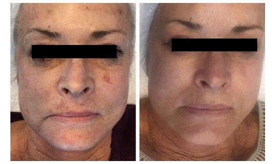 Plexus FPL Anti Ageing Treatments at Helen Taylor Aesthetics Clinic in Rugby, Before After 1
