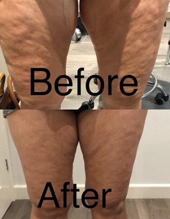 3D Lipo Fat Reduction, Cellulite Treatments, Helen Taylor Skin Clinic, Rugby