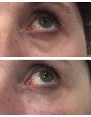 improve-under-eye-dark-circles