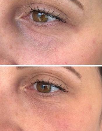 under-eye-treatments-rugby-aesthetics-salon